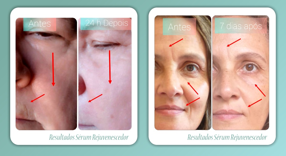 S COSMETICOS DO BEM - Os perigos dos tratamentos esteticos invasivos - a alternativa